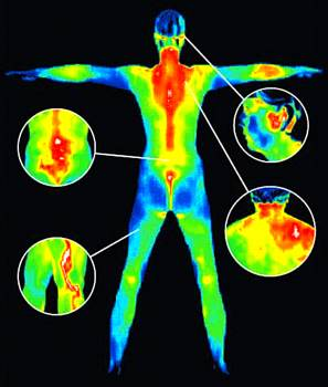 medical thermal imaging san celemente ca