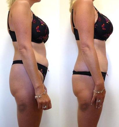 lipo-belly-fat-loss