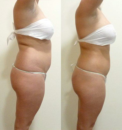 ... Lipo Fat Removal Procedures