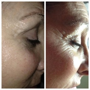 Stem Cell Facelift San Clemente CA