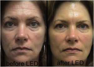 LED_Treatment Before and After