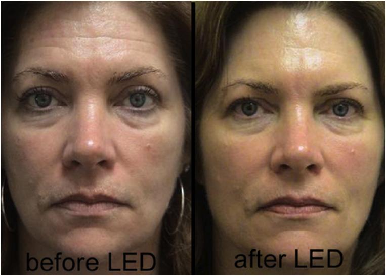 Led Light O2 Wellness Center