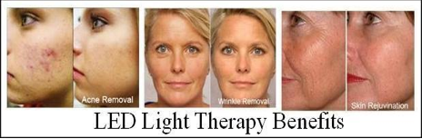 LEd Light Therapy Benefits San Clemente CA